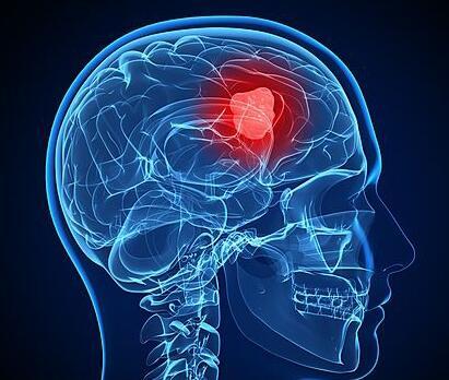脑肿瘤放射治疗|头部放疗患者需要注意哪些
