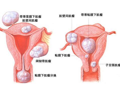 膀胱癌術后復發的表現