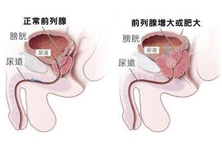 前列腺癌切除后遗症
