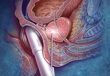 前列腺癌复发值是多少