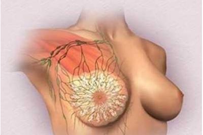 乳腺癌化疗对身体的危害有哪些