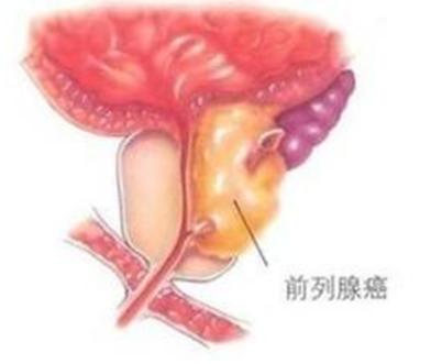前列腺癌什么运动增强体质