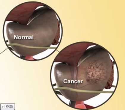 前列腺癌术后并发症