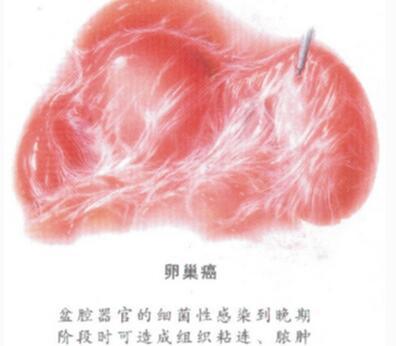 卵巢癌的血液检查