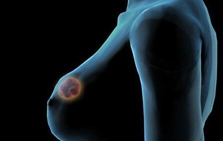 乳腺癌术后积液的护理