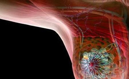 乳腺癌治疗费用高吗