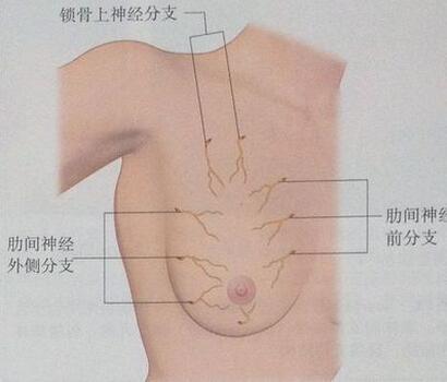 乳腺癌假体有危害吗