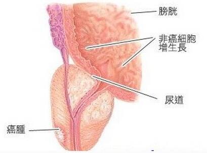 前列腺癌的晚期存活期