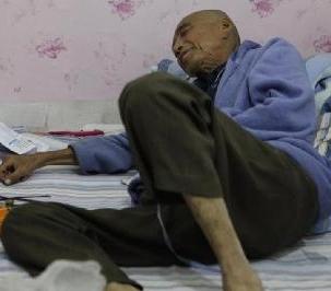 老年人骨癌晚期能活多久呢