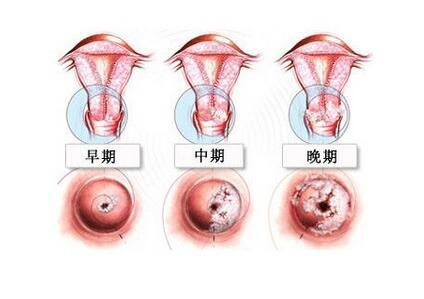 宫颈肌瘤手术记录_宫颈癌3期手术得多少钱