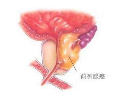 前列腺癌会通过口腔传染吗