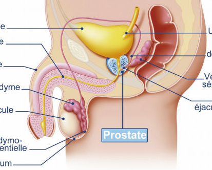 前列腺癌适合什么运动