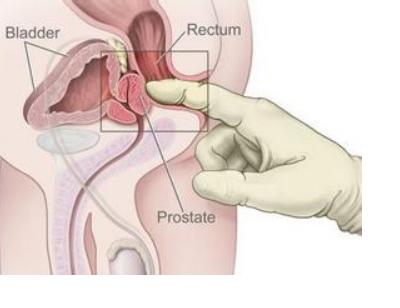 前列腺癌的危害大吗