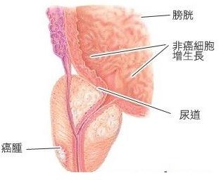 前列腺癌表现的典型症状