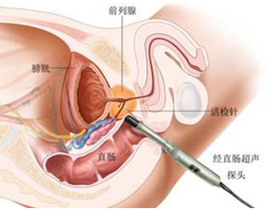 前列腺癌复发率高吗