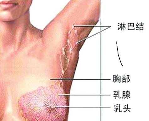 治术,包括清扫腋窝淋巴结群,使腋下至上臂内侧的淋巴管不可避免地