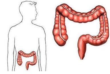 结肠癌晚期吃哪些中药比较好