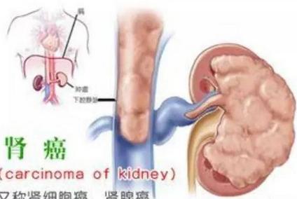 中年男性如何有效预防肾癌