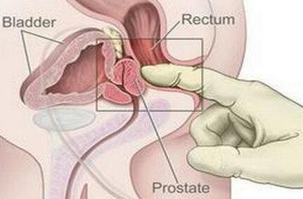 前列腺癌有哪几大危害