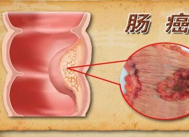 女性怀孕时得了直肠癌怎么办