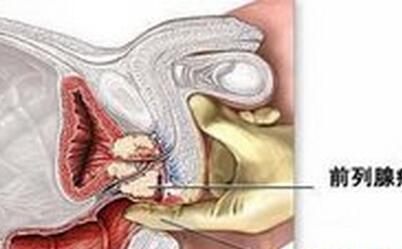 前列腺癌手术后会复发吗