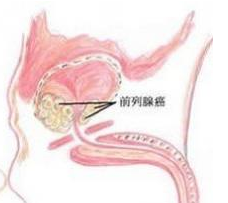 有遗传性前列腺癌吗