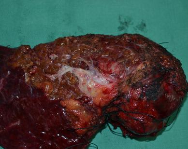 原发性肝癌的分期