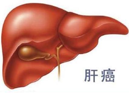 肝癌细胞最怕什么东西
