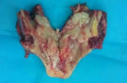 得了喉癌會隔代遺傳嗎