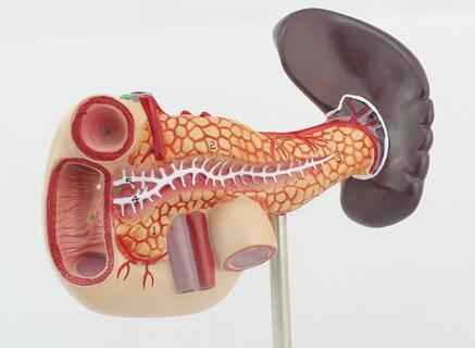 胰腺癌晚期腹水的原理_肝癌晚期病人腹水图片