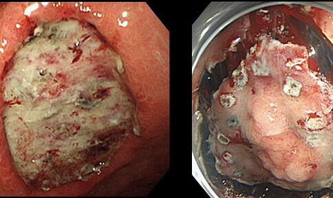 孕期会不会得结肠癌