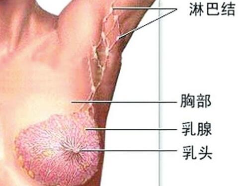 乳腺癌发作时有危险吗