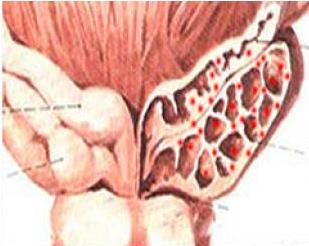 精囊炎的感染途径