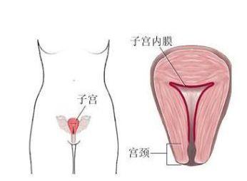 功能性子宫出血必需手术吗