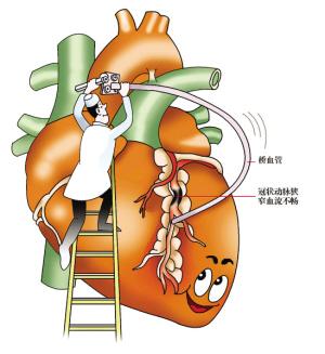肺动脉高压不及时治疗的后果