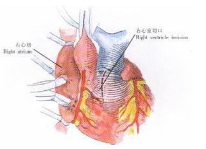 肺动脉高压复发的原因是什么