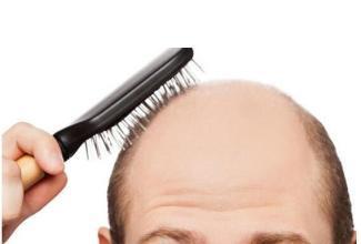 脱发护理方法有哪些