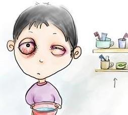"""中医小药方治疗""""红眼病"""""""