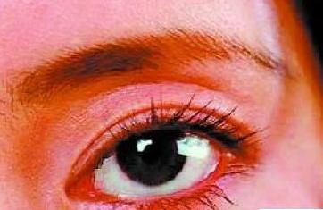 红眼病患者的预防措施