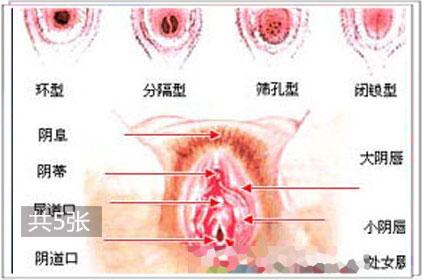 直击19岁少女处女膜修复过程1
