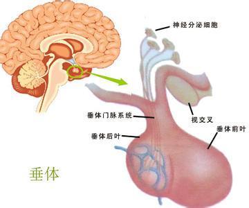 垂体瘤有哪些典型的症状