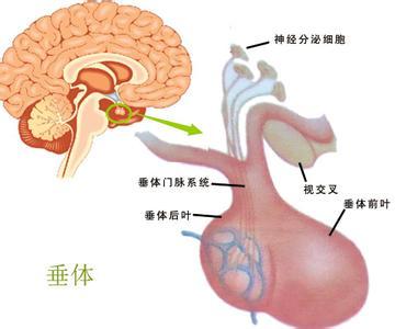 脑垂体瘤是发生在垂体上的肿瘤,通常又称为