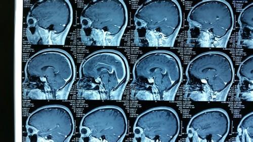 垂体瘤康复护理要怎么做
