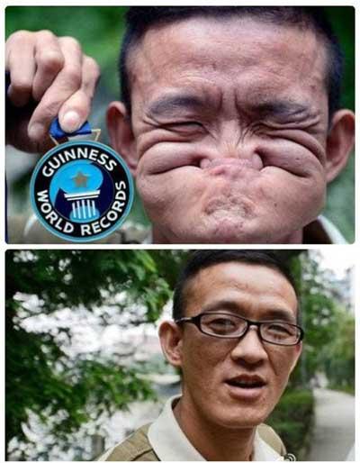 中国 烂脸王 获吉尼斯奖 一秒口吞鼻让脸扭曲图片