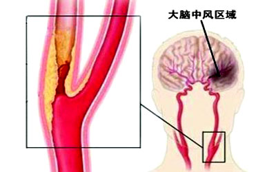颈部动脉硬化的治疗_颈部动脉硬化 颈动脉硬化可以治疗吗?