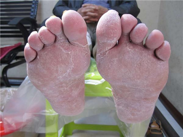 脚气的症状是什么