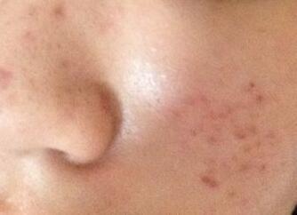 疤痕患者会出现哪些症状呢