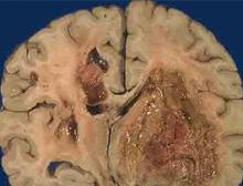 胶质瘤的病因特点有哪些