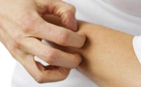 过敏性皮炎能自愈吗
