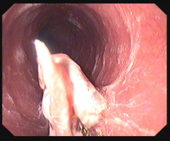 胶质瘤的前兆是什么
